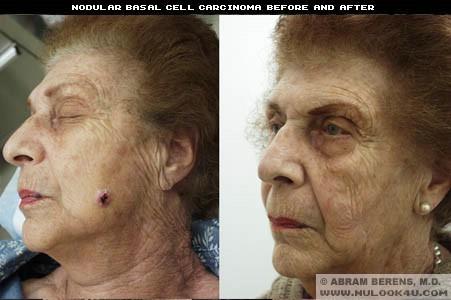 face lesion
