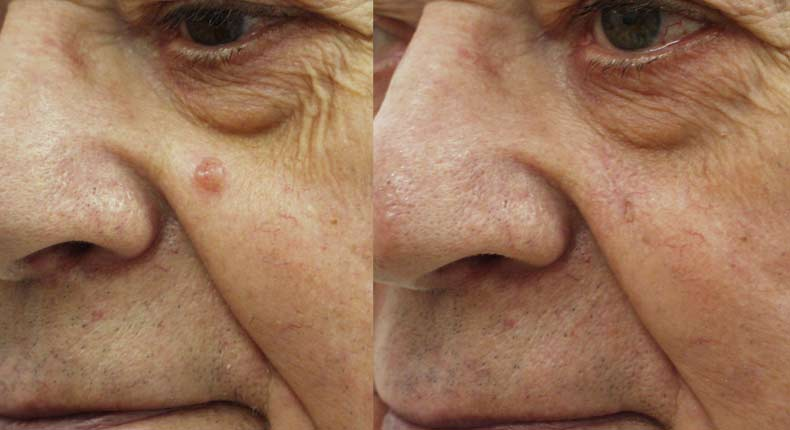 Brilliant Pictures of facial moles that interfere