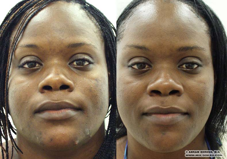 Plantation Acne Treatment