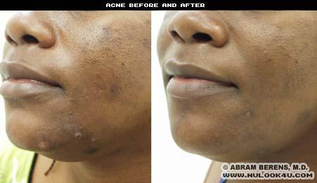 acne photos
