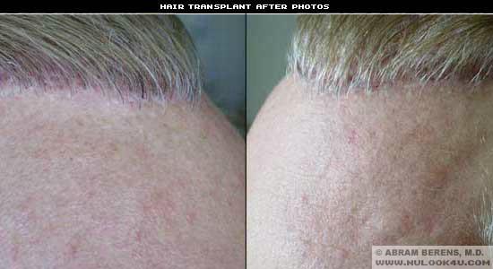 south fl hair transplant