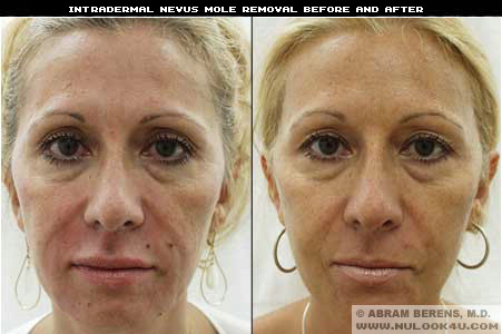 mole removal hollywood
