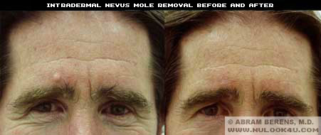 broward mole removal