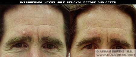 broward mole removal