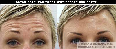 south florida botox forehead treatment