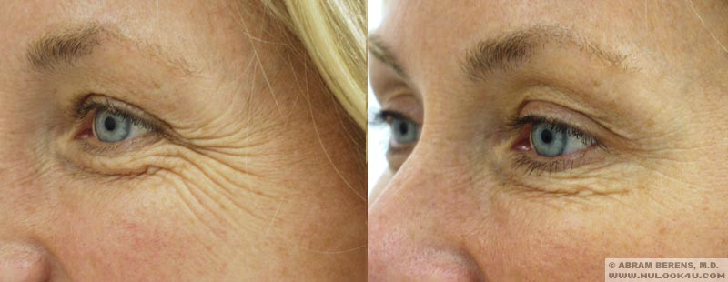 south fl botox glabella treatment