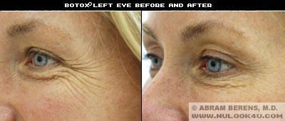 south fl botox left eye treatment