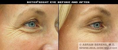 south fl botox eye treatment
