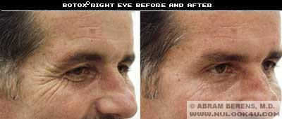 south fl botox right eye