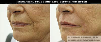 south florida collagen lips treatment