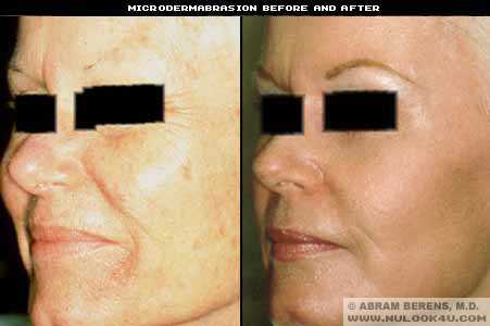 Microdermabrasion - in Fort Lauderdale South Florida