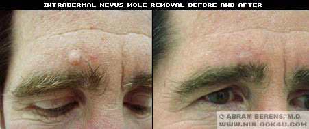 south florida mole removal